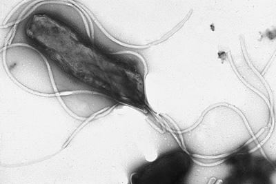 Helicobacter pylori, la bacteria más difícil de tratar. La alternativa natural a tomar antibióticos